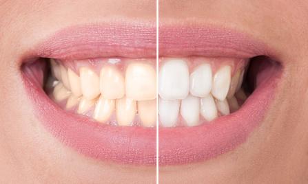 8 Wege Zähne Auf Natürliche Weise Weißer Zu Machen