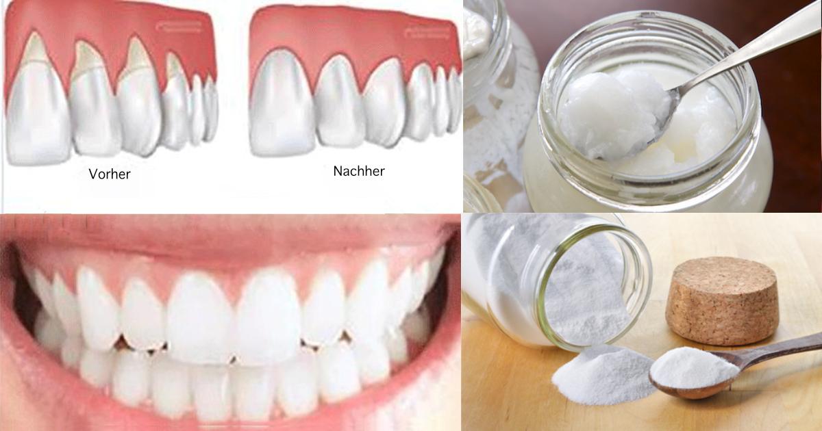 Vitamin d mangel zahnfleisch